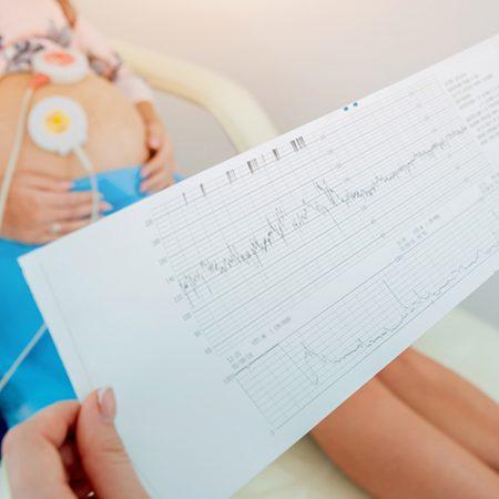 Vaja za soočanje s porodno bolečino